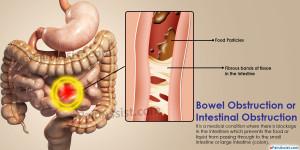 bowel problems 15